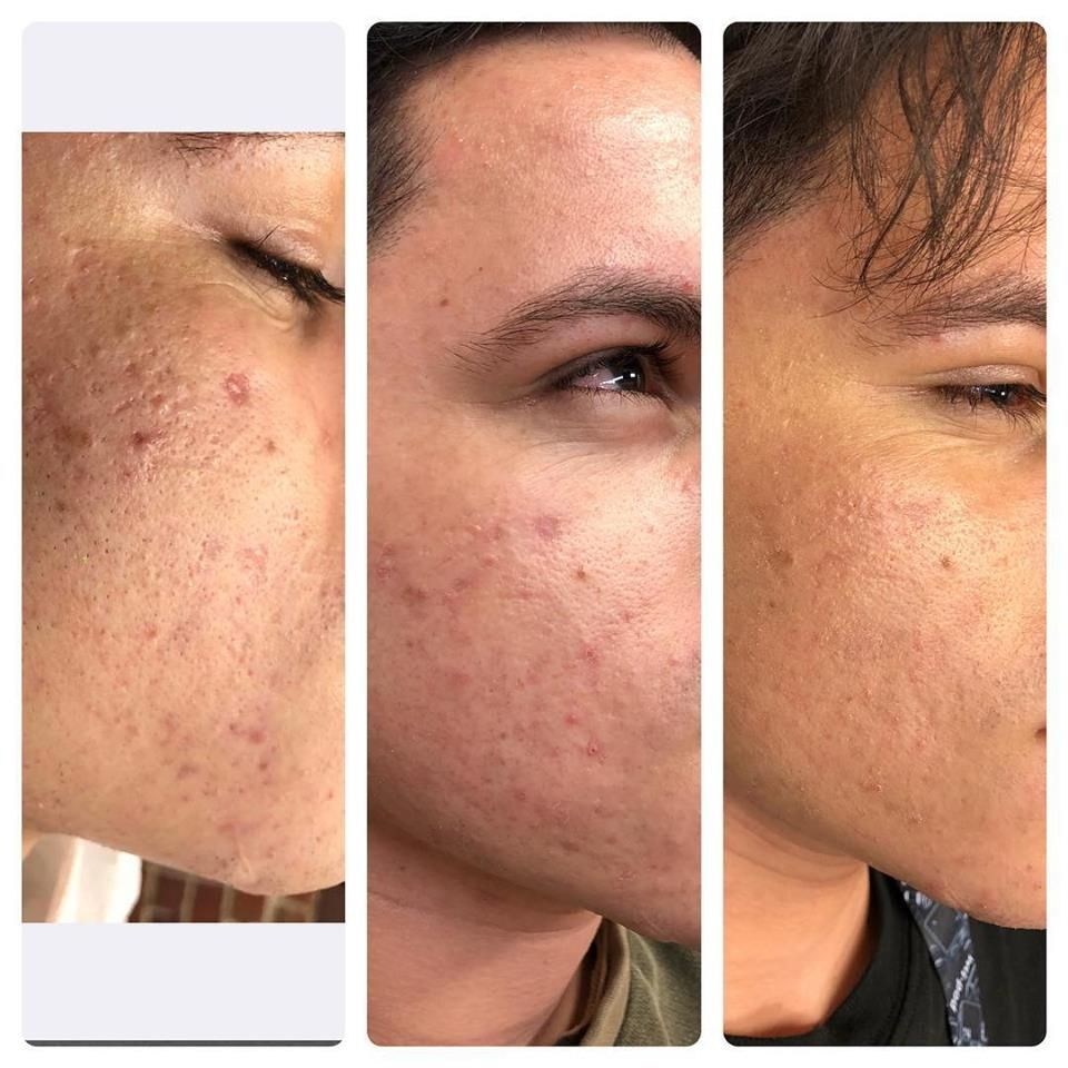 Prp Acne Scar Treatment Cosmetic Laser Center