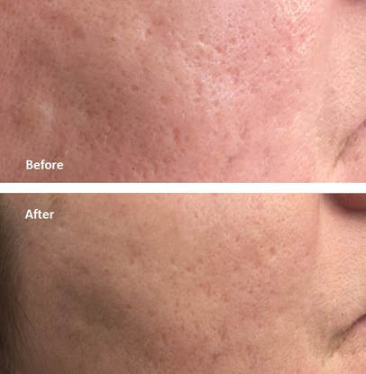 Laser Acne Scar Removal Cosmetic Laser Center