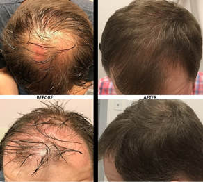 Prp Hair Restoration Cosmetic Amp Laser Center