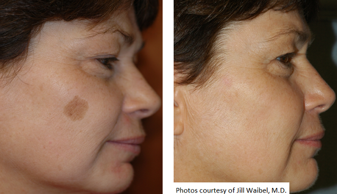 Skin Pigmentation- Melasma, Sunspots and Freckles - Cosmetic