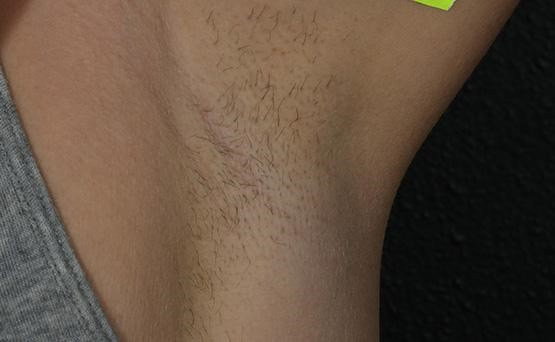 Laser Hair Removal Cosmetic Laser Center