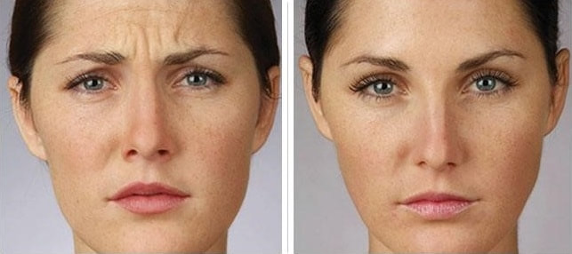 Botox Cosmetic Laser Center